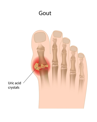 uric acid lab test abbreviation gout symptoms causes treatment