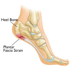 Foot Arch and Heel Pain