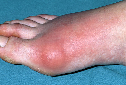 Foot Gout Pain