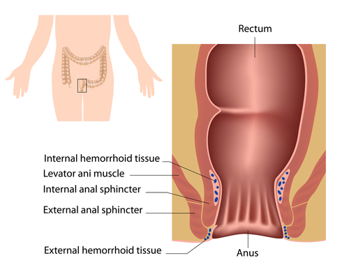Internal Hemorrhoids  Doctor Rennies Blog-8617