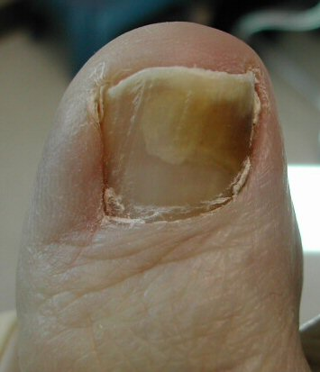 """Foot and Jock Itch and Fungal Nail Infections – """"There Are Fungus ..."""