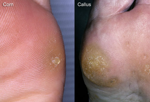 composite photo of corn and callus on foot Heloma Durum