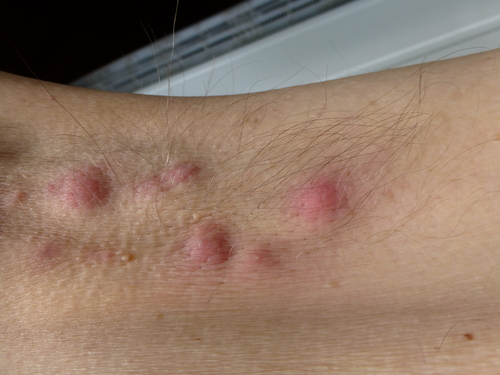 Herpes simplex virus | herpes symptoms, pictures | Herpies