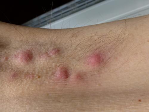 hidradenitis suppurativa blogg