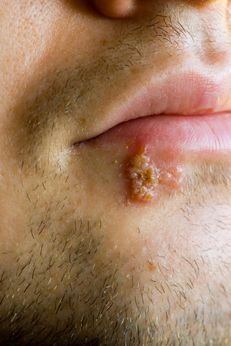 all about cold sores (oral herpes) – doctor rennie's blog