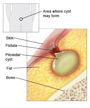 anus Tender area in