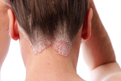 Dermatology | Doctor Rennie's Blog