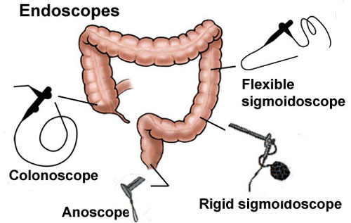 Colon-Endoscopes