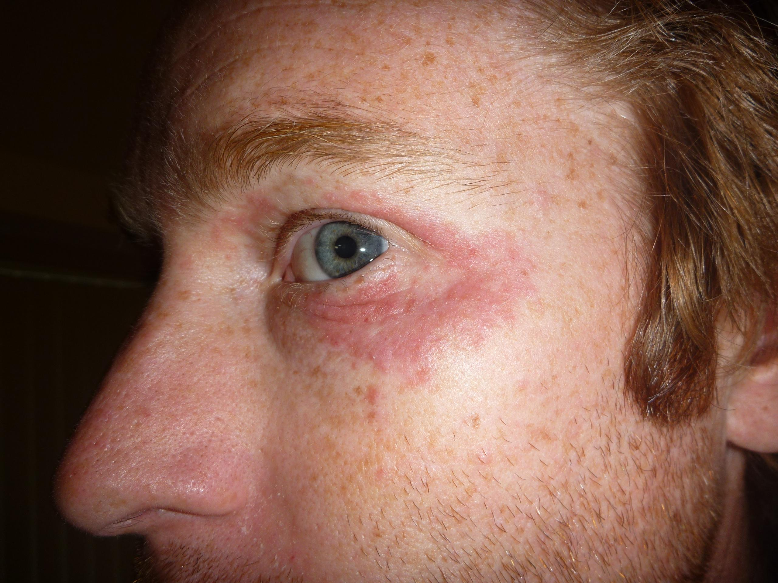 rash around eyes - Dermatology - MedHelp