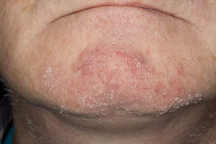 seborrheic dermatitis around nose #10